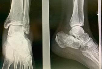 Calcaneus or heel bone fractures
