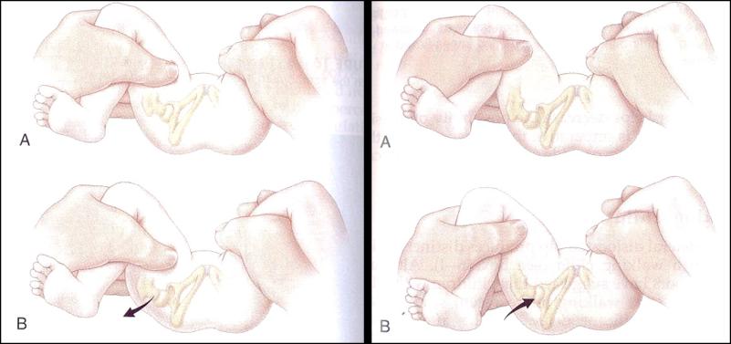 Figure 3. DDH