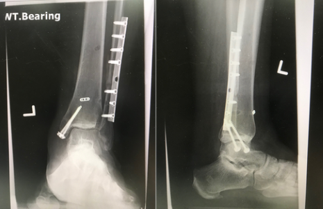 Figure 3. ankle fractures