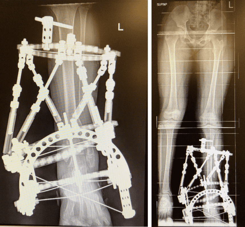Figure 32. Paediatric Fractures