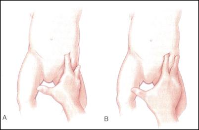 Figure 4. DDH
