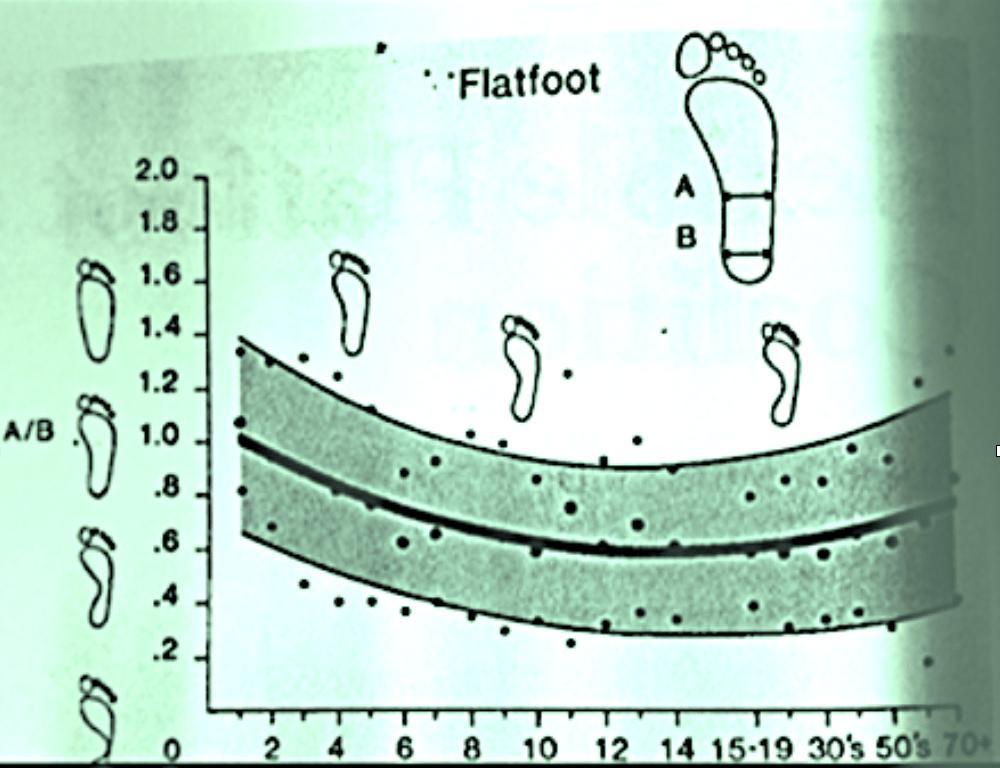 Figure 4. Flatfoot