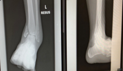 Figure 4. ankle fractures