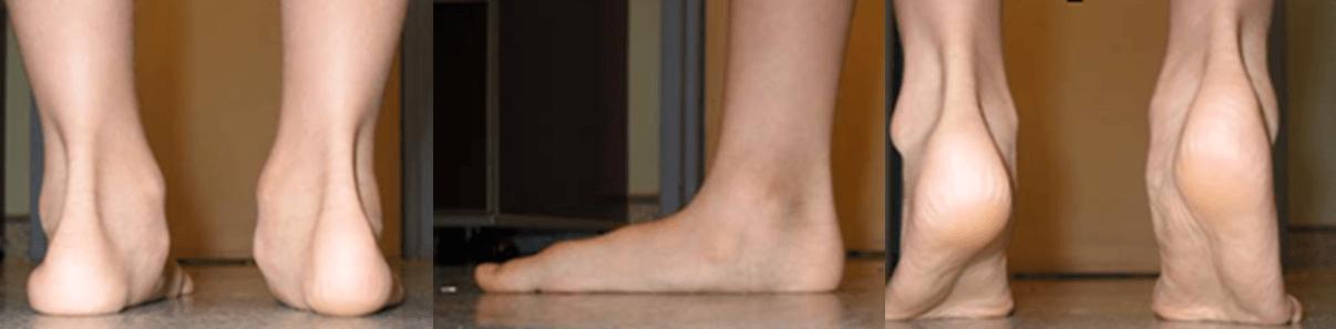 Figure 5. Flatfoot