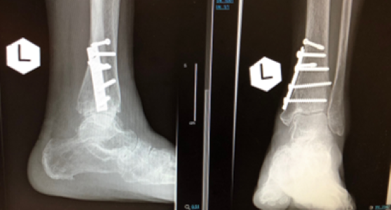Figure 6. ankle fractures