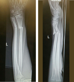 Figure 7, Paediatric Fractures