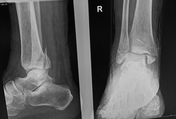 Figure 7. ankle fractures