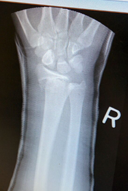 Figure 9, Paediatric Fractures