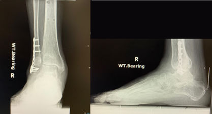 Figure 9. ankle fractures