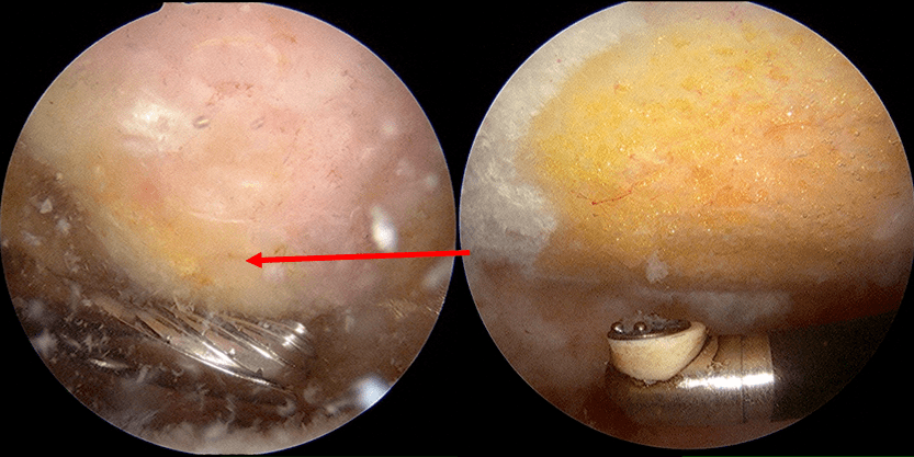 Arthroscopic view of a subacromial bone spur being shaven off with an arthroscopic burr.