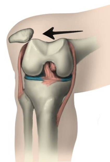 Image of a patella dislocation (Courtesy of orthoinfo.aaos.org)