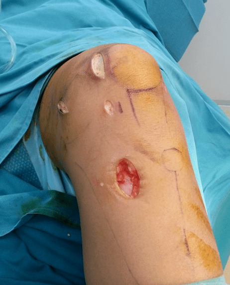 Medial patella-femoral ligament reconstruction being performed using key-hole incisions by Dr Wee.