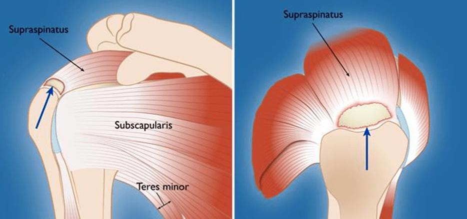 A torn rotator cuff tendon.