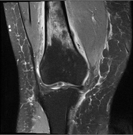 R女士的MRI检查显示股骨的 应力性骨折