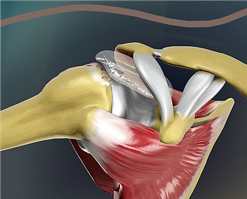nSpace balloon being arthroscopically deployed into the shoulder for irreparable cuff tear (Picture courtesy of OrthoSpace)