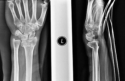 腕关节骨折的术前X光检查