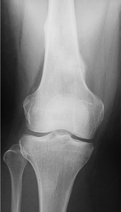 R女士的X光检查显示愈合后的应力性骨折。
