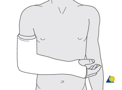 前臂石膏(图像来源:AOTrauma)- 前臂骨折