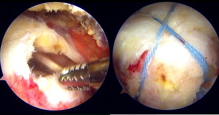 Arthroscopic view of a rotator cuff full-thickness tendon tear being repaired by Dr Wee using a double row suture bridge key-hole technique.