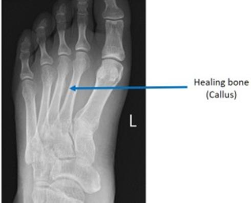 X光检查显示愈合后的足部应力性骨折