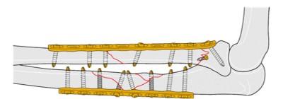 前臂固定(图像来源:AOTrauma)