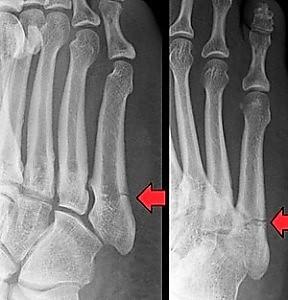 4 injured-metatarsal-bone-288x300