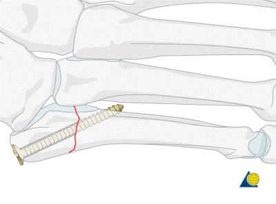 骨管中的长螺钉—图像来源: