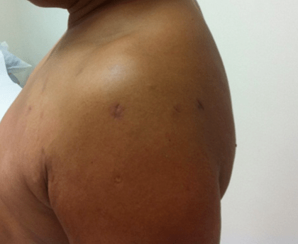 Wee医生可在关节镜下通过双排缝合桥接钥孔技术修复肩袖全层肌腱撕裂。