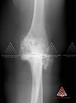 关节炎性肘伴骨刺形成、变性和关节间隙损耗 - 肘关节炎