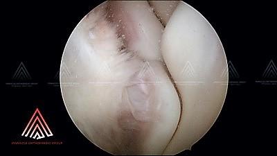 在正常肘关节内部的关节镜视图