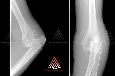 骨折-肘关节脱位(恐怖三联征)的X光检查
