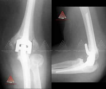 肘关节置换术治疗肘关节炎的X光片