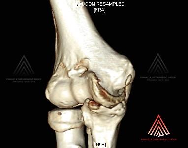 可能得益于肘关节镜检查术的肘关节撞击综合征的骨刺形成CT扫描 - 肘关节镜