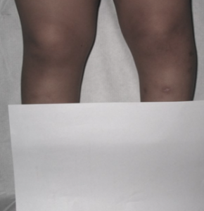 Figure-1.-Blount-Disease