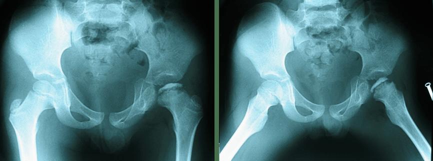 图1:正位(AP)X光照片(左图)及蛙式侧位片(右图)显示左侧髋关节病变。-儿童髋关节疼痛