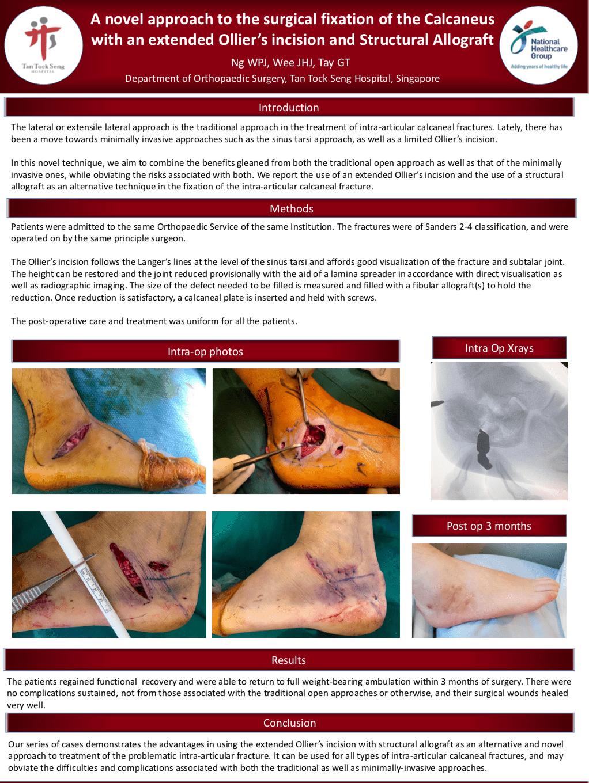 Figure-10.-Calcaneus-Fractures-Poster