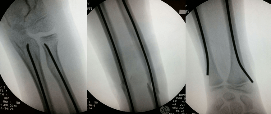 图11:术中X光片显示使用钛制弹性髓内钉(TEN)复位和固定前臂骨折