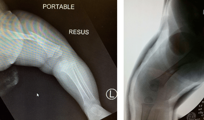 Figure-19.-Paediatric-Fractures1