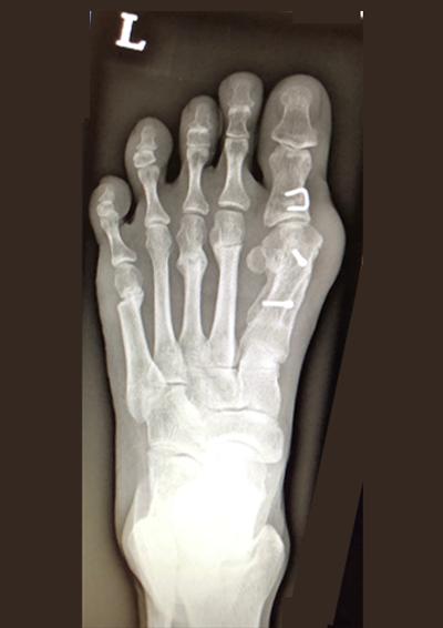 图片2. X光检查显示常规手术矫正。