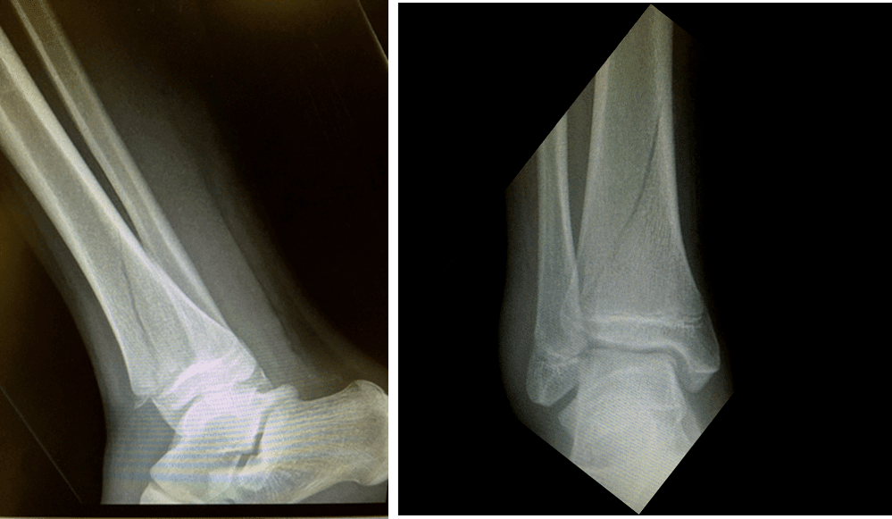 Figure-21.-Paediatric-Fractures1