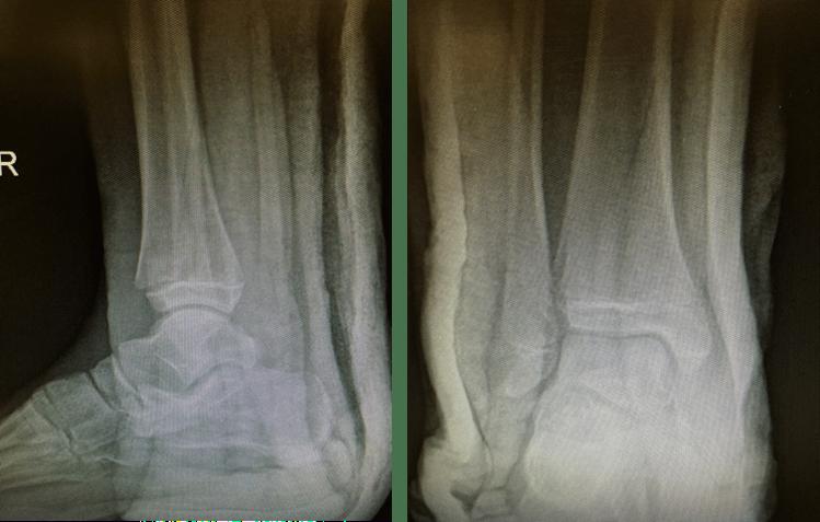 图22:这是一种稳定性骨折,可以用石膏治疗。