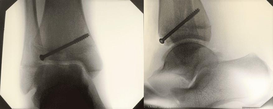 图26:术中X光片显示固定。