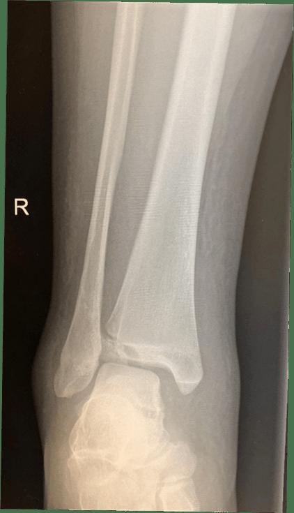 图29:损伤后X光片显示腓骨轻微骨折和胫骨Tillaux骨折。
