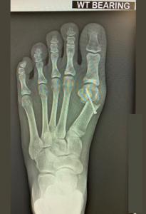 图片3. X光检查显示微创手术矫正方法。