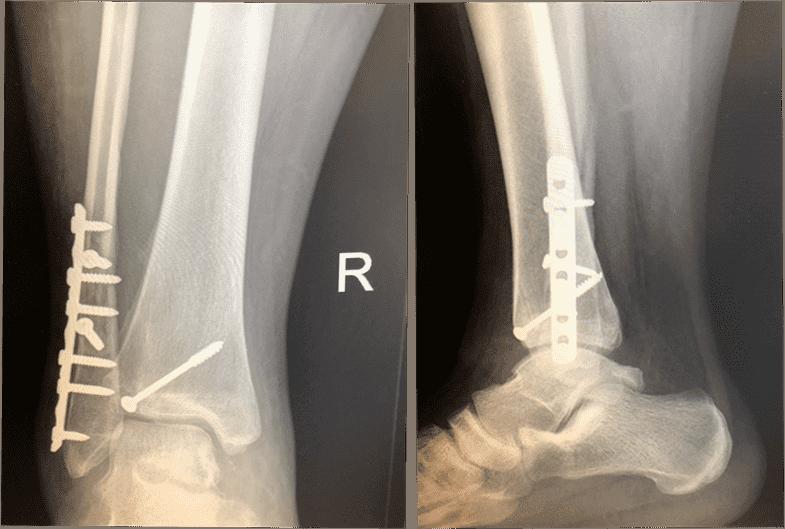 图30:X光片显示固定。