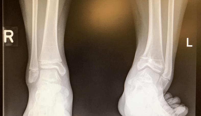 图31:显示累及生长板的SH2型踝关节骨折。之前已固定骨折,但是生长板修复欠佳。因此,发育过程中出现骺板骨桥。
