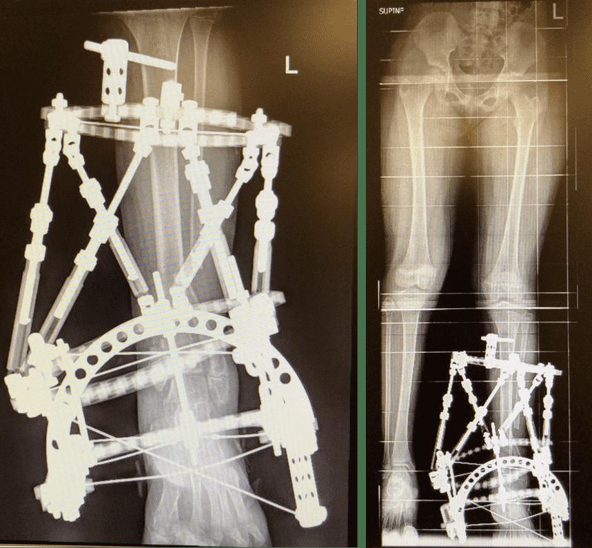图32:显示去除骺板骨桥,进行骨切割,以平整踝关节。进行骨延长。
