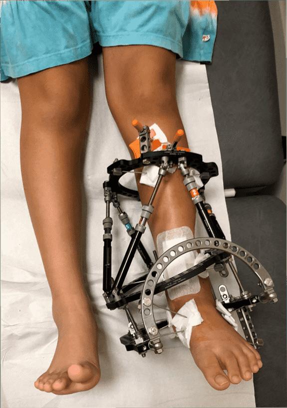 图33:显示带有固定器的踝关节。-儿童骨折治疗