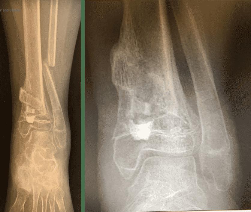 图34:X光片显示愈合。