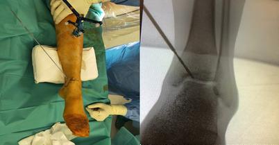 图片2b。骨软骨病变(OCL)的O形臂引导下逆向钻孔。